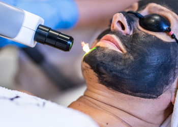 YASUMI SPA - laserowy peeling węglowy black doll | twarz lub dekolt (zabieg podstawowy)
