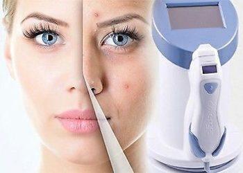 Salon Kosmetyczny Madame Katrina Clinica Estetica - emerge -  okolice oczu - kurze łapki