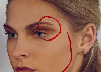 Salon Kosmetyczny Madame Katrina Clinica Estetica - mezoterapia frakcyjna - twarz + szyja + dekolt