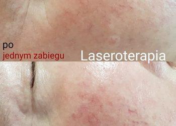 Fajnygabinet.pl -  laseroterapia  rumienia twarzy