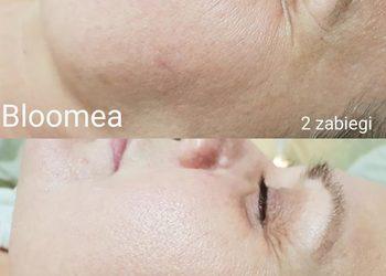 Fajnygabinet.pl - bloomea twarz i szyja