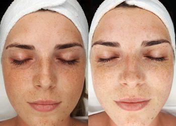 Centrum Zdrowia - bb glow! zabieg rozświetlający skórę twarzy