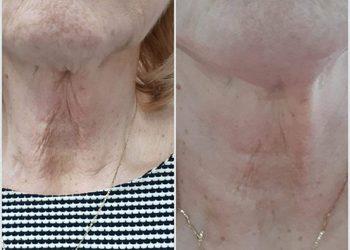 beautebar - hifu rewolucja w odmładzaniu - zagęszczaniu skóry
