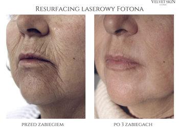 Velvet Skin Clinic - terapie łączone laserem fotona -30%