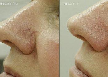 Salon Kosmetyczny Ewelina - laserowe zamykanie naczynek