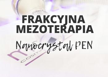 ESTETICA Instytut M`onduniq - frakcyjna mezoterapia nanocrystal pen