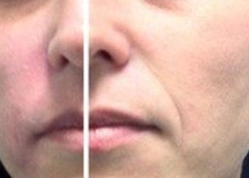 ESTETICA Instytut M`onduniq - wypełnianie bruzdy nosowo-wargowe 1 ml