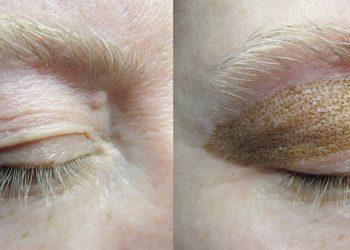 ESTETICA Instytut M`onduniq - blefaroplastyka powieka górna lub dolina łez