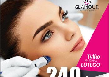 Glamour Instytut Urody - tylko w lutym - mezoterapia mikroigłowa