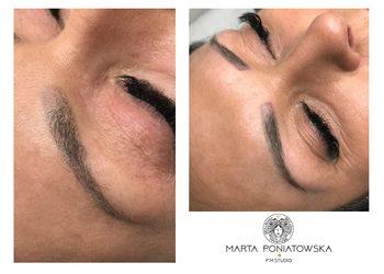 PMSTUDIO Marta Poniatowska - pml remover (usuwanie nieudanych tatuaży i makijaży permanentnych)