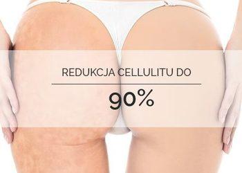 Beauty Story Kosmetologia Estetyczna - 10 zabiegów icoone na ciało+5 karboksyterapii ( na wybraną partię ciała) ubranko gratis !