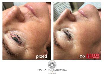 PMSTUDIO Marta Poniatowska - reti peel - dwuetapowy system silnie odmładzający