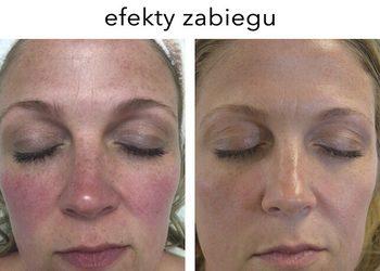 Art of Cosmetology - maui flauer peel - zabieg dla cery wrażliwej, naczyniwej, zanieczyszczonej