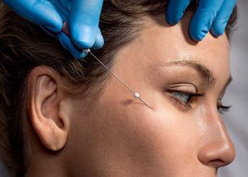 """TINTAMARE Beauty & Medical Spa - likwidacja tzw """"chomików"""" nici pdo haczykowe"""