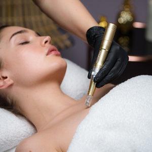 TINTAMARE Beauty & Medical Spa - Mezoterapia mikroigłowa Dermapen