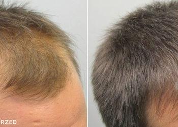 BEAUTY PREMIUM Kosmetologia Estetyczna - zabieg trychologiczny - mezoterapia mikroigłowa - zapobieganie wypadaniu włosów, wzmocnienie i zagęszczenie