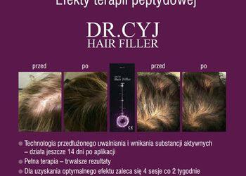 DENERIS - dr.cyj-terapia peptydowa  włosów