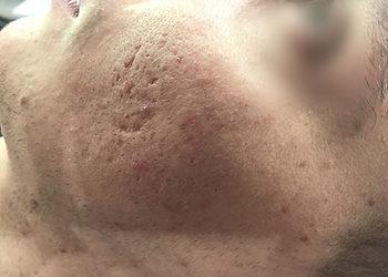 BEAUTY PREMIUM Kosmetologia Estetyczna - estgen kuracja na blizny potrądzikowe