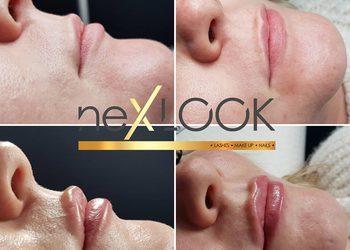 nexLOOK - powiększanie ust kwasem hialuronowym