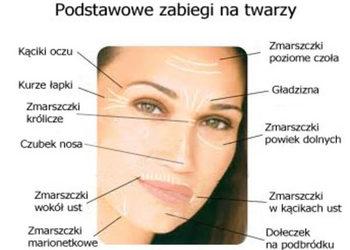 SCM estetic  - toksyna botulinowa- opadające kąciki ust