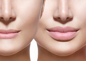 SCM estetic  - modelowanie i powiększanie ust kwasem hialuronowym