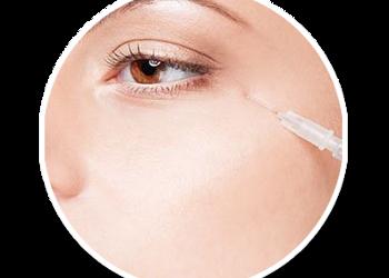 SCM estetic  - mezoterapia okolicy oka