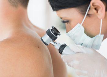 SCM estetic  - badanie dermatoskopowe