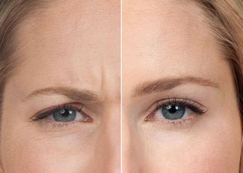 Beauty Story Kosmetologia Estetyczna - botox - 15%