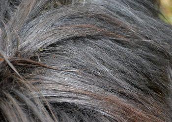 Fajnygabinet.pl - osocze bogatopłytkowe - terapia łysienia