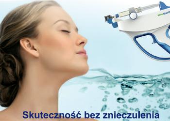 ESTILO - (58)mezoterapia iglowa