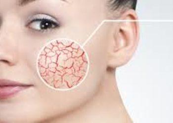 SCM estetic  - laserowe zamykanie naczynek - twarz