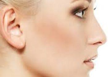 SCM estetic  - depilacja laser - uszy