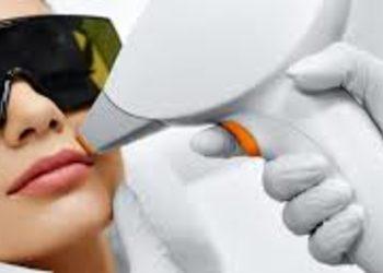 SCM estetic  - depilacja laser- górna warga