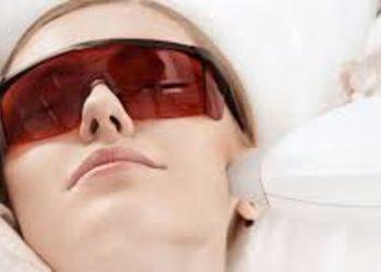 SCM estetic  - depilacja laserem- policzki