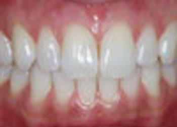 SCM estetic  - toksyna botulinowa - uśmiech dziąsłowy