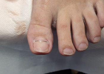 Ecosfera Centrum Podologii i Kosmetologii - klamra tytanowa na wrastające paznokcie
