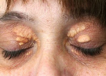 Klinika dr Ertuganow  - usunięcie kępki żółtej okolicy oka
