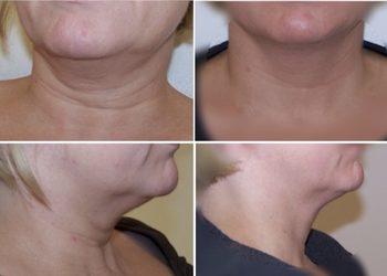 Salon Mixtura - usuwanie tkanki tłuszczoewj