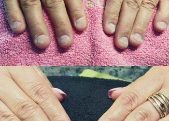 All4Nails - korekta obgryzionych paznokci