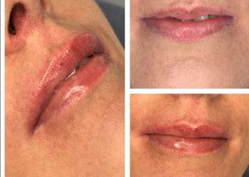 Salon Mixtura - powiekszenie ust kwasem hialuronowym
