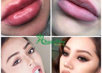 Christina Dang Beauty - wypełniacze - kwas hialuronowy america