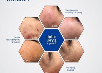 Art of Cosmetology - estgen – inżynieria tkankowa
