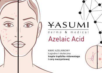 Yasumi - Tarnów - kwas azelainowy