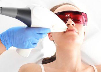 SHE DAY SPA&HAIR DESIGN - depilacja laserowa vectus wąsik / laser hair removal over the lips