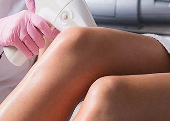 SHE DAY SPA&HAIR DESIGN - depilacja laserowa vectus całe nogi / laser hair removal full legs