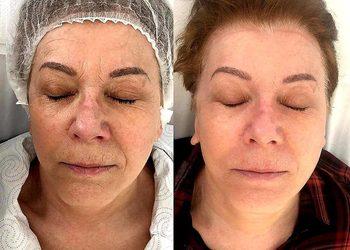 Gabinet Kosmetologiczny Agnieszka Szczurek - botoage twarz+szyja+dekolt