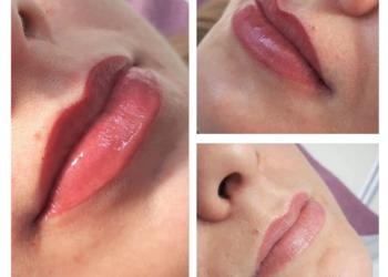Velvet Skin Clinic - makijaż permenantny ust