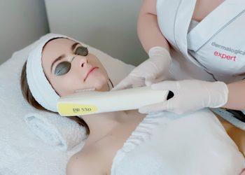 VICI CLINIC - Kraków - laserowe leczenie trądziku różowatego - czoło