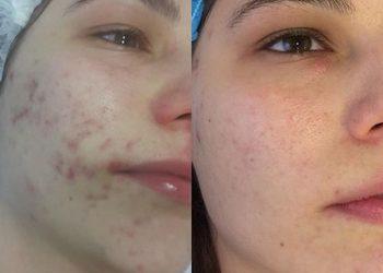 Villa Dermatica - derma peel - acne - leczenie trądziku