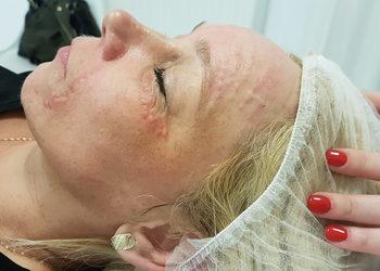 Fiore salon fryzjersko-kosmetyczny  - mezoterapia igłowa